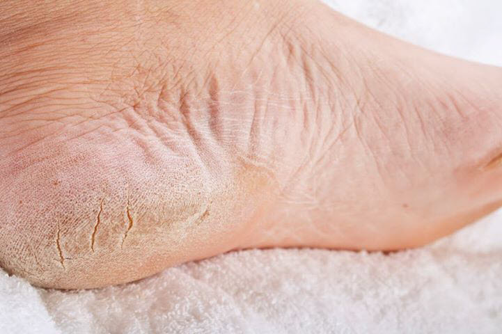 How To Get Rid Of Dry Cracked Heels