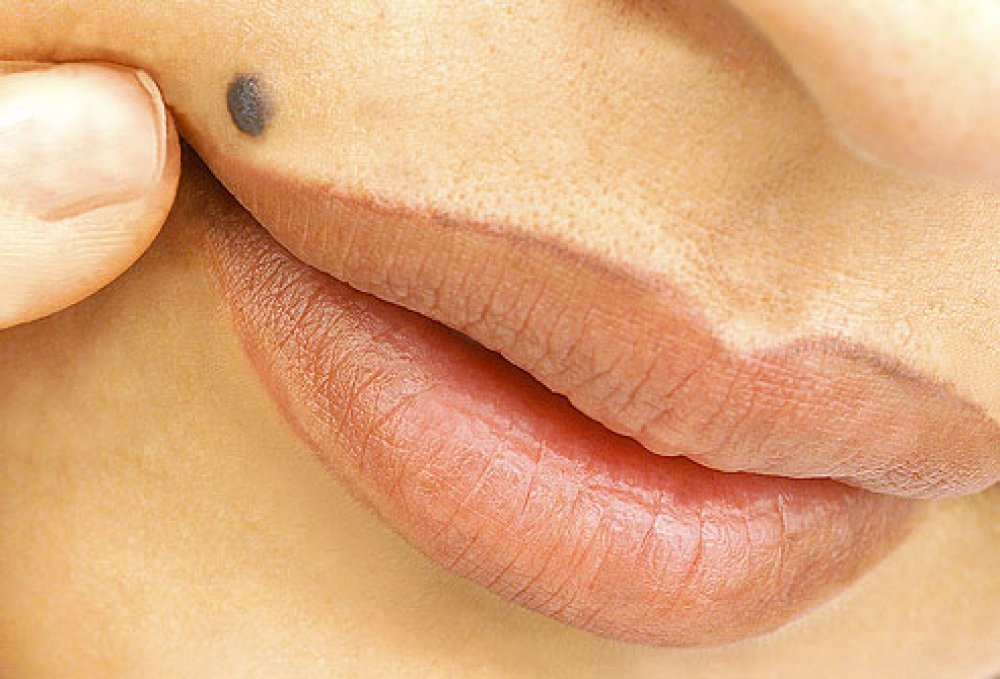 Best Home Remedies For Moles