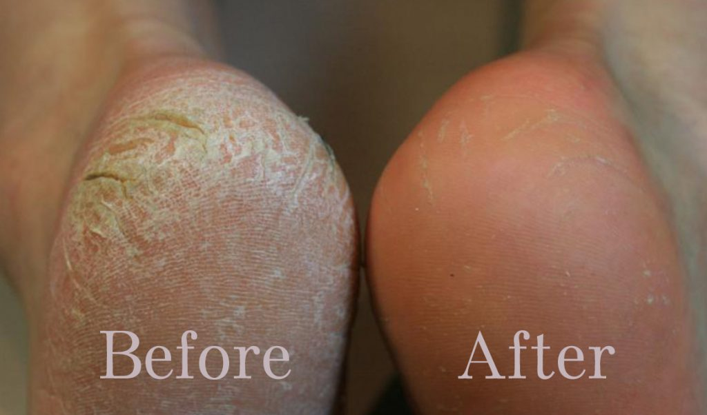 how-to-treat-dry-callused-feet