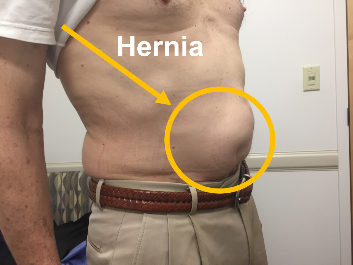 7 Common Types Of Hernia