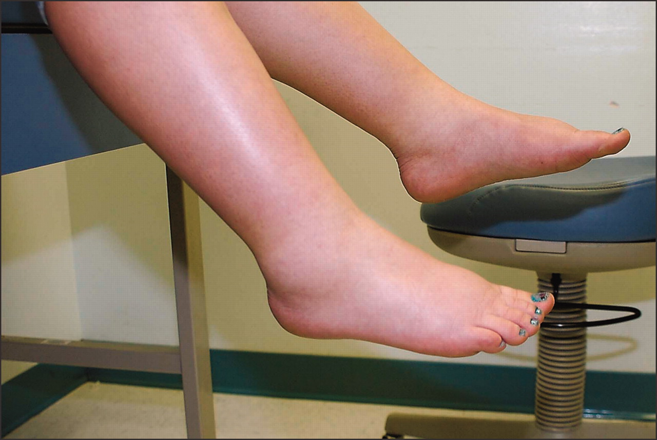 Causes Of Leg Edema