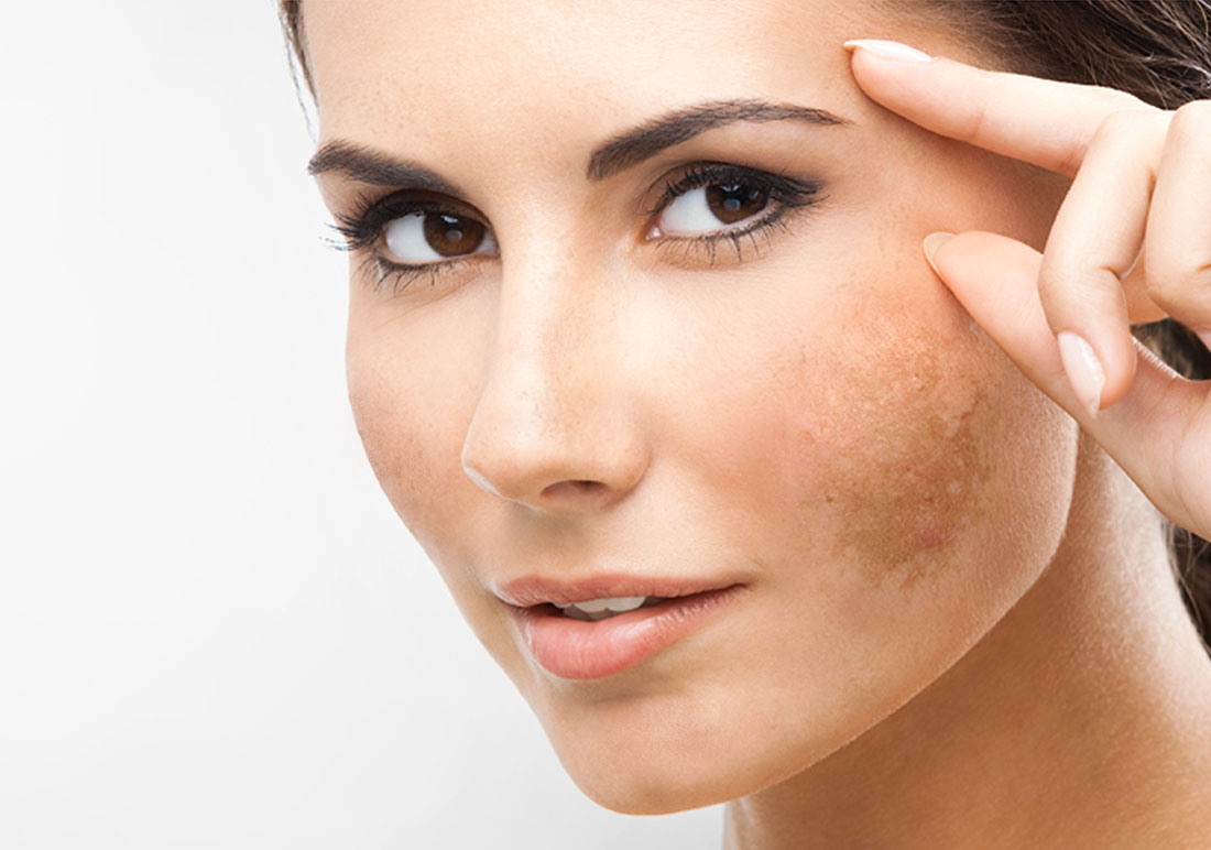 How To Cure Melasma