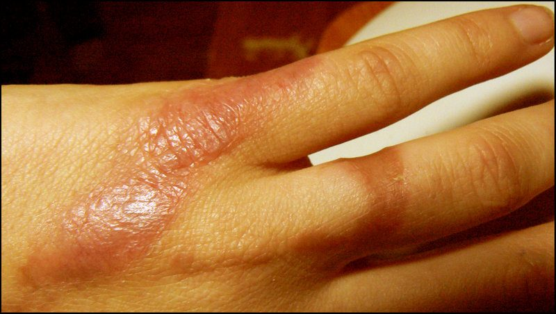 Best Home Remedies For Burns