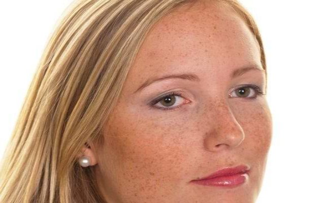 8 Effective Home Remedies For Pigmentation