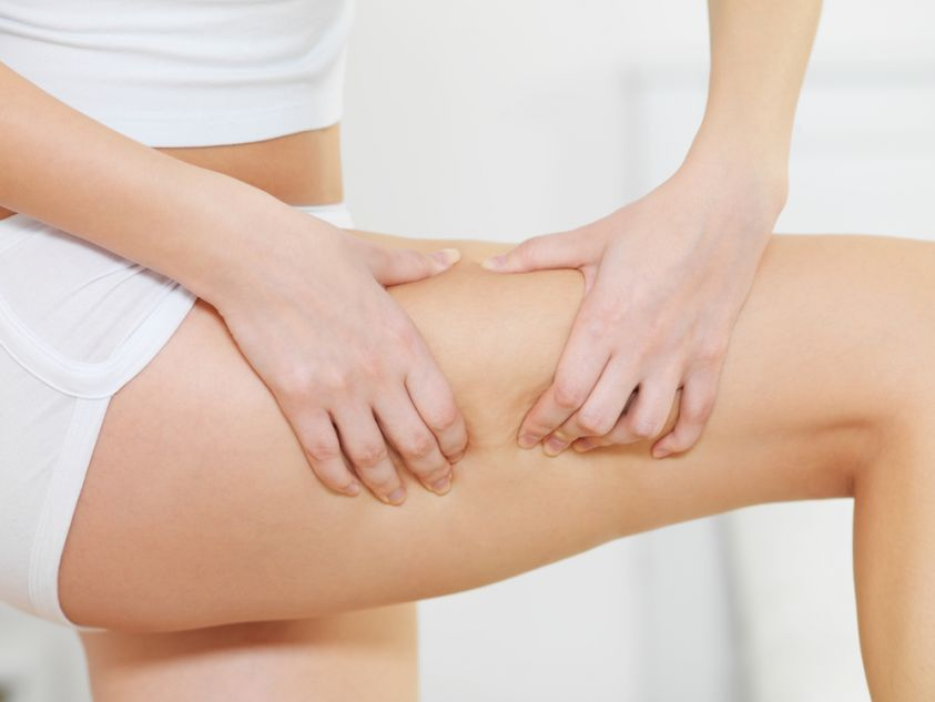 Top Herbal Remedies For Cellulite