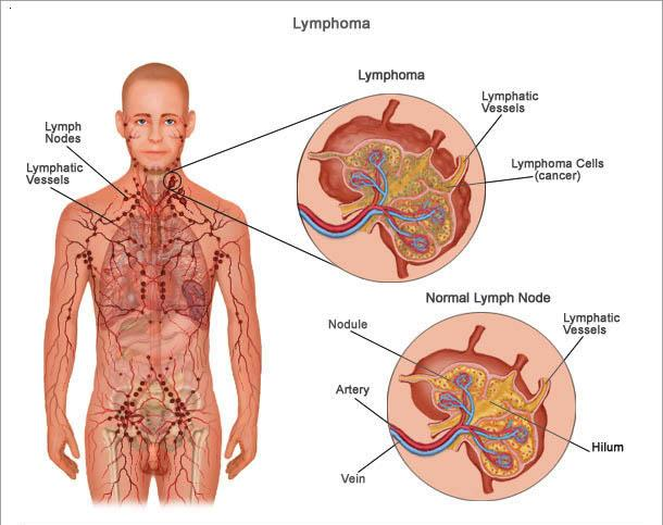 Types & Symptoms Lymphoma Canada