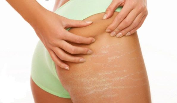 8 Natural Cures For Stretch Marks