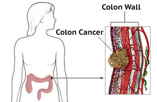 Colorectal Cancer Causes And Symptoms For Women