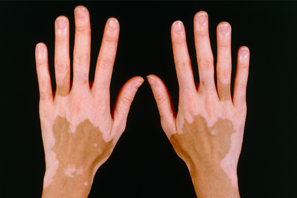 6 Top Home Remedies For Vitiligo