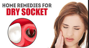 8 Best Home Remedies For Dry Socket