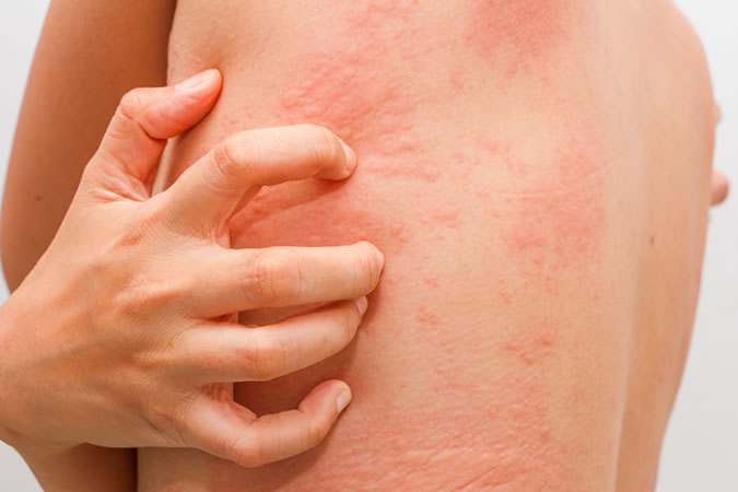 6 Effective Home Remedies For Rashes