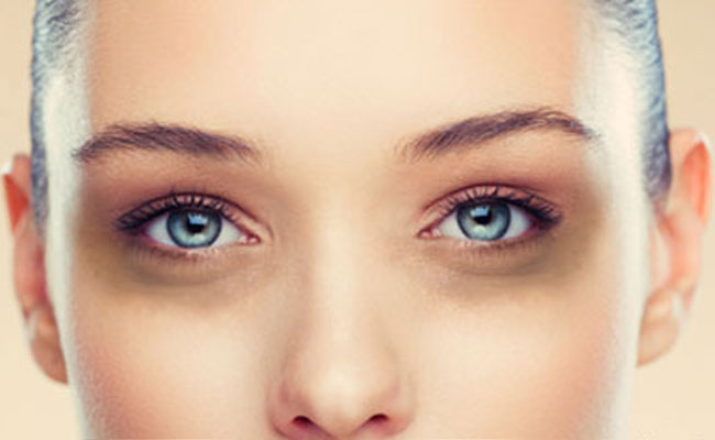 How To Use Castor Oil To get Rid Of Dark Circles