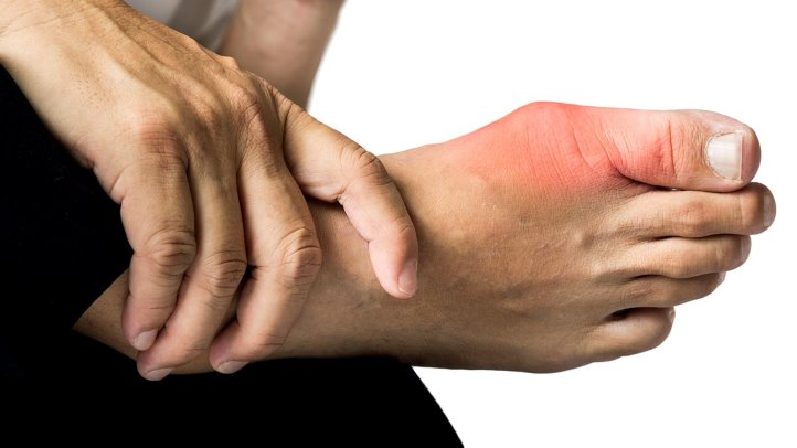 Top 10 Effective Natural Home Remedies for Gout