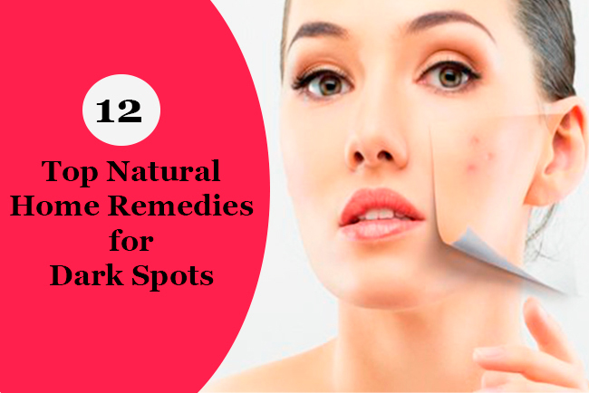 12-top-natural-home-remedies-for-dark-spots