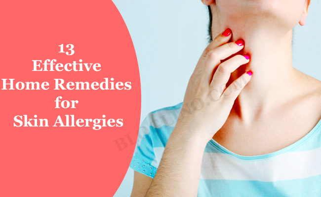 13 Effective Natural Home Remedies for Skin Allergies