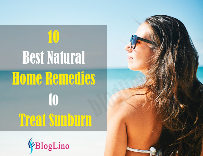 10-best-natural-home-remedies-to-treat-sunburn