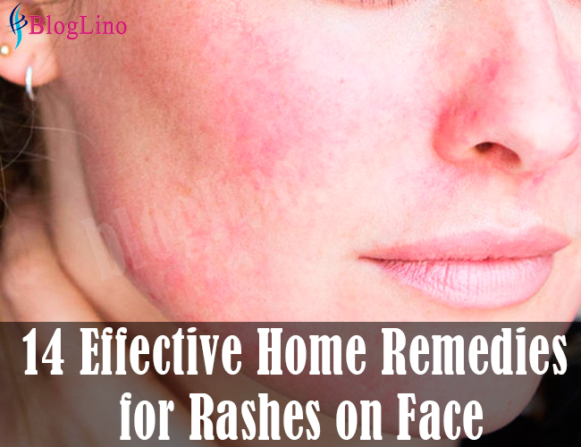 14-effective-natural-home-remedies-for-rashes-on-face