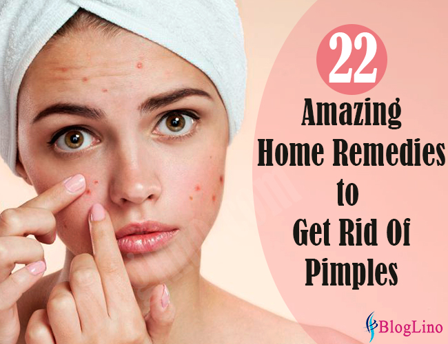 22-amazing-home-remedies-to-get-rid-of-pimples