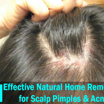 15 Effective Natural Home Remedies for Scalp Pimples & Acne