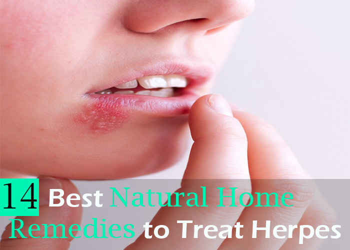 14-Best-Natural-Home-Remedies-to-Treat-Herpes
