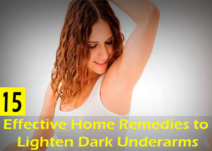 Top-15-Effective-Home-Remedies-to-Lighten-Dark-Underarms