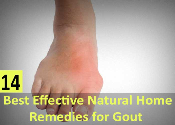 14-Best-Effective-Natural-Home-Remedies-for-Gout---Causes,-Symptoms-and-Prevention-Tips