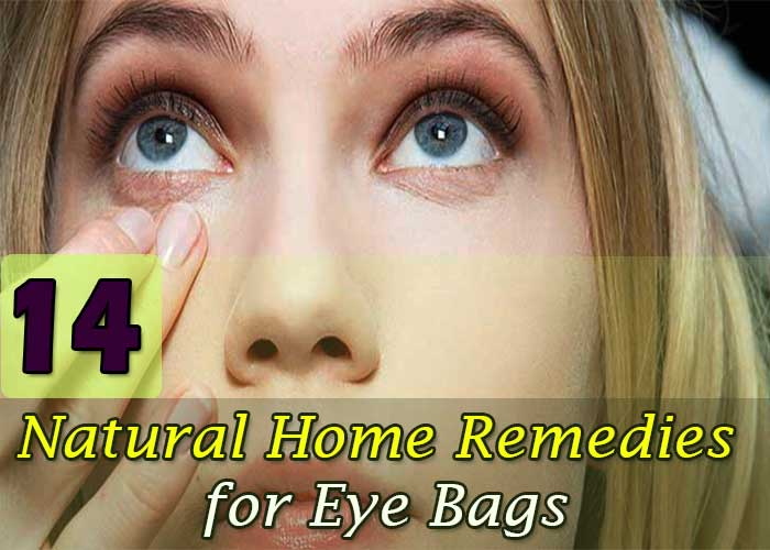 14 Best Effective Natural Home Remedies for Eye Bags