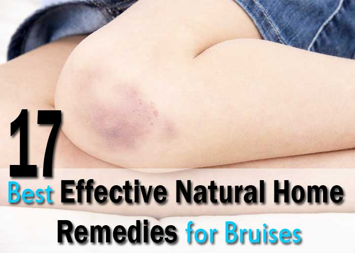 17-Best-Effective-Natural-Home-Remedies-for-Bruises