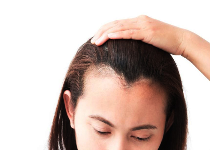 Alopecia Areata - To Stop Hair Growth