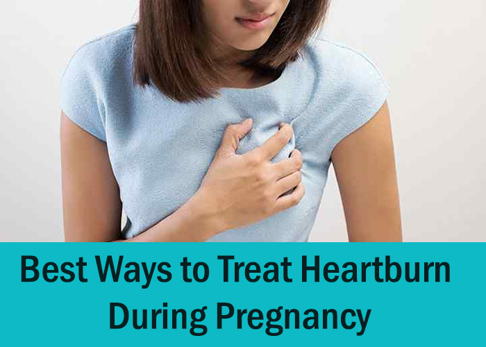 Best Ways to Treat Heartburn During Pregnancy
