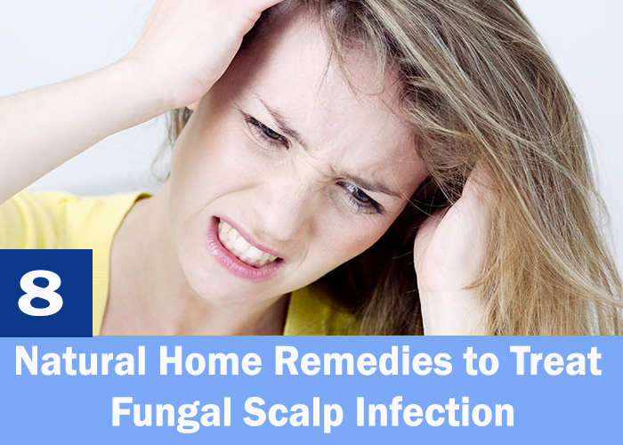 Garlic to Get Rid of Fungal Scalp Infection