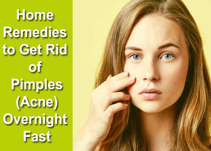 Home-Remedies-to-Get-Rid-of-Pimples-(Acne)-Overnight-Fast