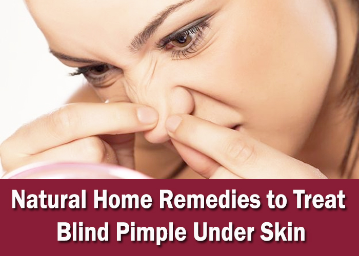 Natural-Home-Remedies-to-Treat-Blind-Pimple-Under-Skin