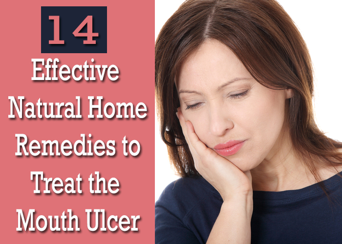 Effective-Natural-Home-Remedies-to-Treat-the-Mouth-Ulcer
