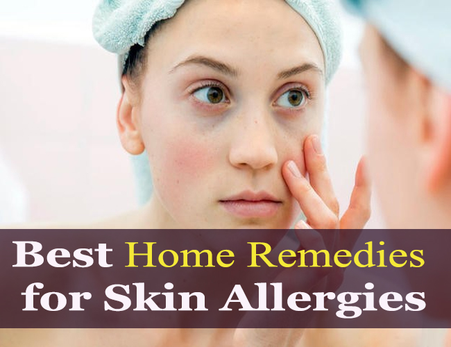 Best-Home-Remedies-for-Skin-Allergies