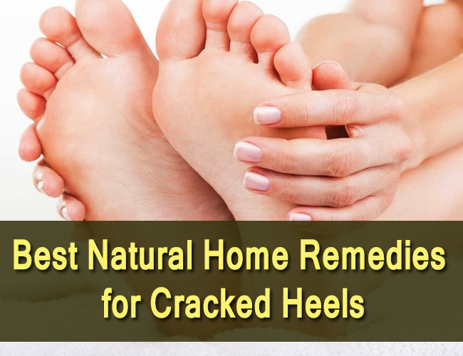 Best-Natural-Home-Remedies-for-Cracked-Heels