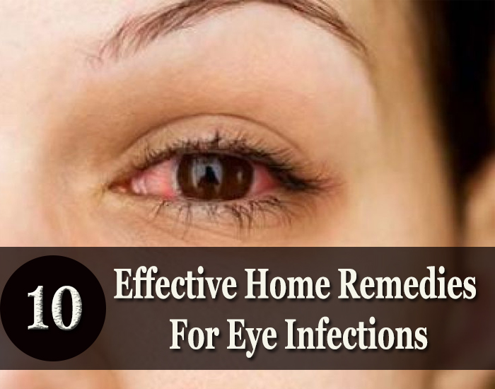 Effective-Home-Remedies-For-Eye-Infections