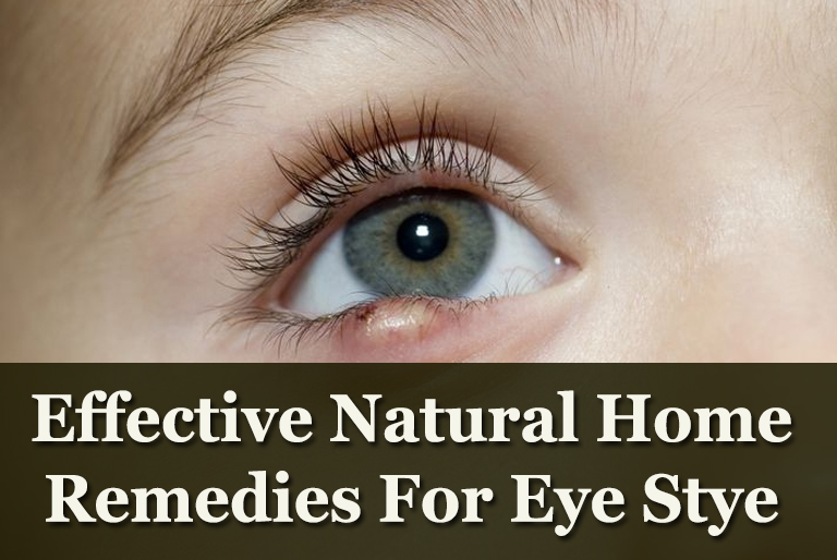 Effective-Natural-Home-Remedies-For-Eye-Stye