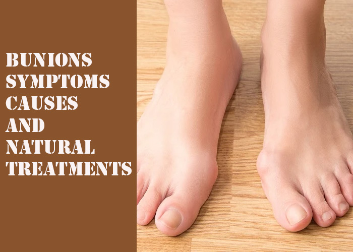 Bunions-–-Symptoms,-Causes,-And-Natural-Treatments